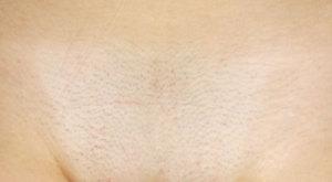Женский лобок