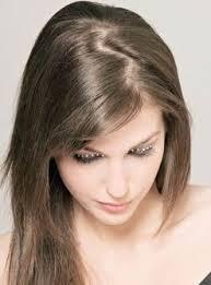 лысина на голове у женщины