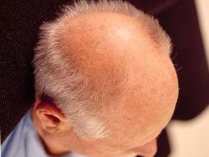 лысина на голове у мужчин