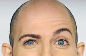 потеря волос у мужчин