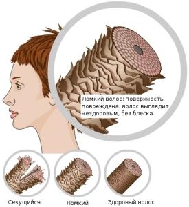 Структура поврежденных волос