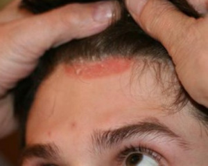 аллергия на  шампунь