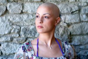 алопеция после химиотерапии