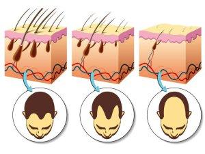 Проведение пересадки волос при алопеции