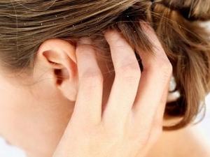 Зуд головы при перхоти