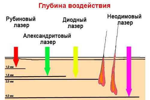 Как работает диодный лазер для эпиляции