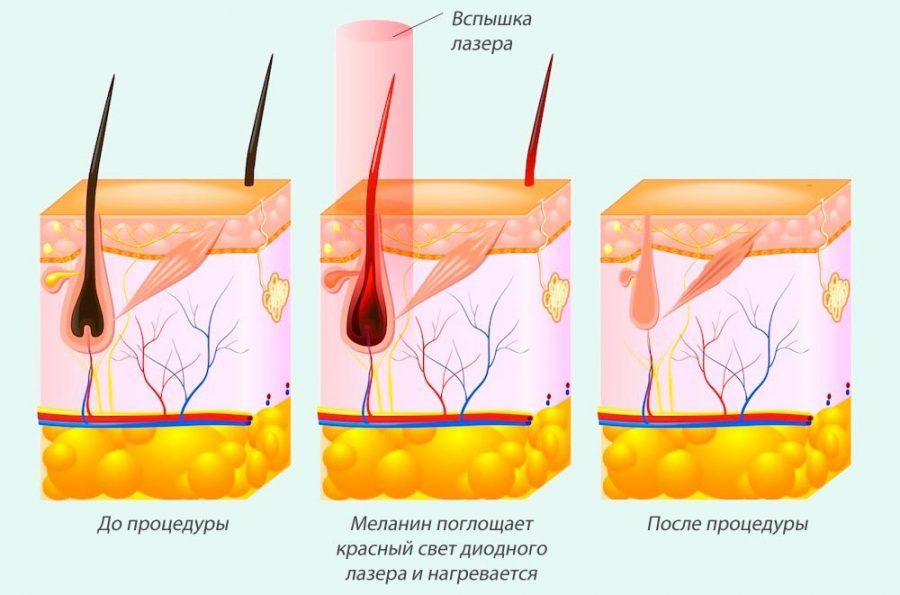 Как происходит удаление волос лазером