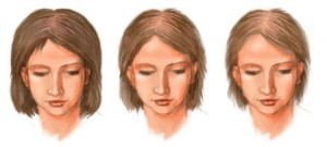 Стадии диффузного выпадения