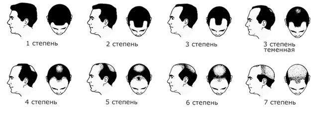 Народные средства обесцветить волосы