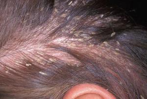 Шелушение кожи головы и выпадение волос: причины и лечение