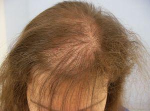 Анемия и выпадение волос