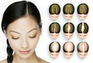 priznaky-alopeciy-y-jenchin