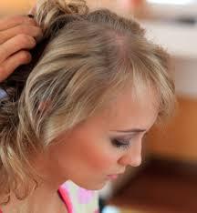 После родов лезут сильно волосы что делать