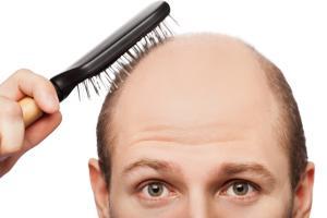 На макушке выпадают волосы