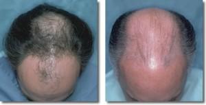 Маска для выпрямления волос с маслами