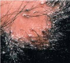 Симптомы рубцовой алопеции