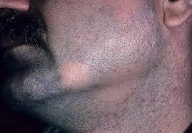 Алопеция на бороде у мужчин