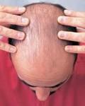 Сильно выпадают волосы у мужчин: причины и лечение