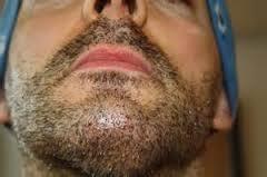стригущий лишай бороды и усов