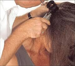 Рубцовая алопеция: симптомы и лечение