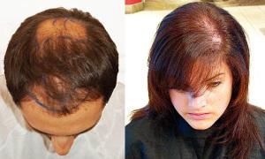 Диффузное выпадение волос у женщин и мужчин