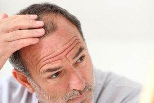 Выпадение волос в пожилом возрасте