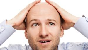 Причины и лечение облысения у мужчин