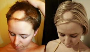 Причины резкого выпадения волос у женщин