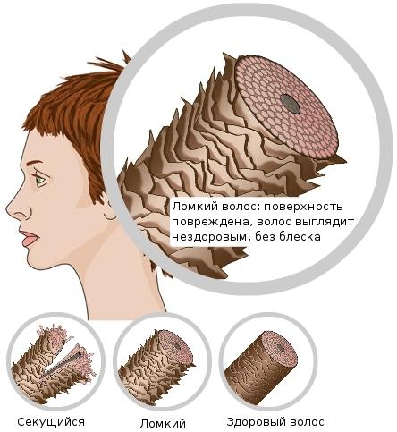 Ломаются и секутся волосы от чего и как их лечить