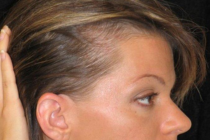 Отвары и настои для лечения волос