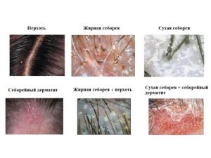 Виды себореи кожи головы